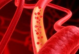 血管、血液の想像図
