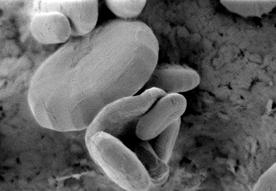 ミドリムシ(みどりむし)特有の成分であるパラミロンの顕微鏡写真