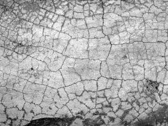 アトピー性皮膚炎の主な症状としては以下が挙げられます。
